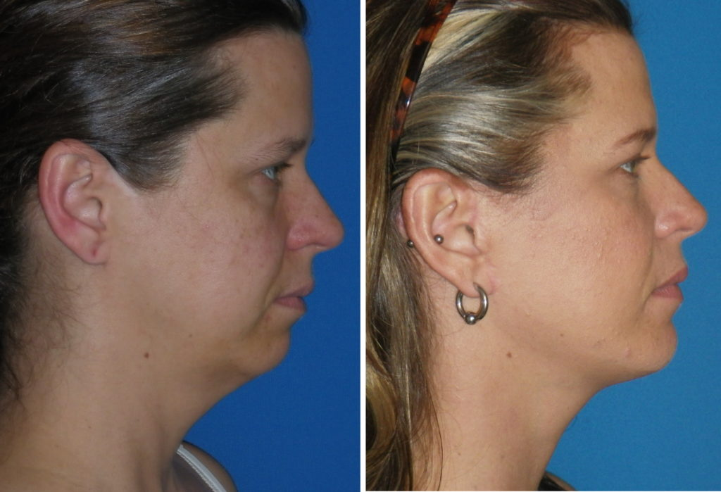 What Does Chin Augmentation Do and What is Involved?